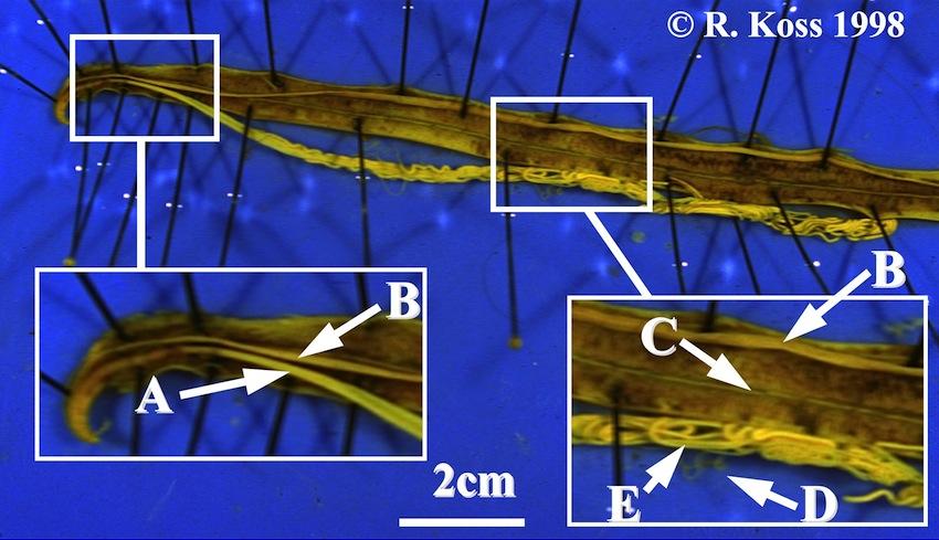 prevalence of ascaris lumbricoides pdf
