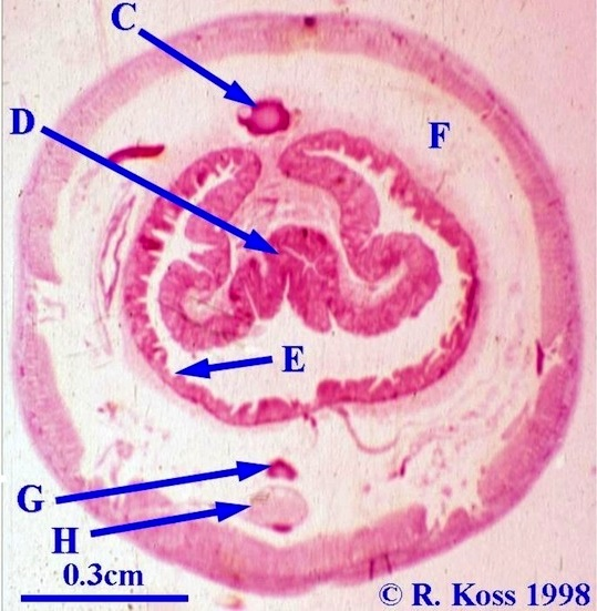 Zool 2250 worm cross section quiz ccuart Images